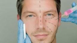 chirurgie esthétique de l'homme