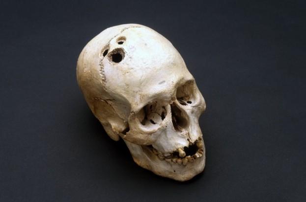 Crâne avec trépanation