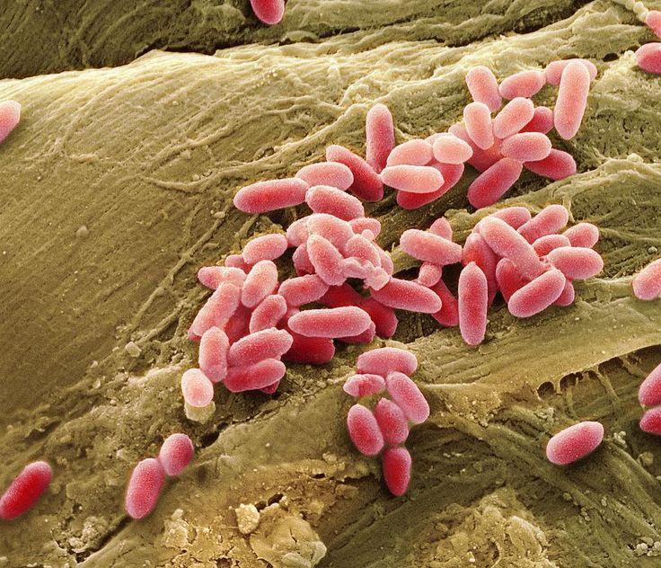 Pseudomonas aeruginosa - bactéries CPC