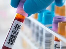 bilan sanguin détecte rapidement une crise cardiaque