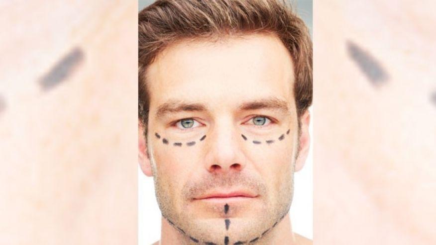 chirurgie esthétique de l'homme la tendance en hausse