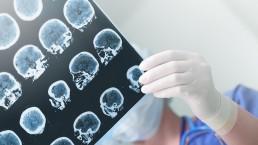 symptômes de l'avc scanner cérébral