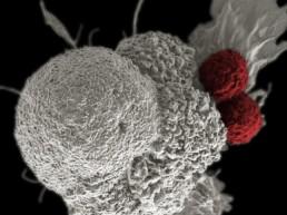 thérapie par les cellules T - cancer de l'ovaire